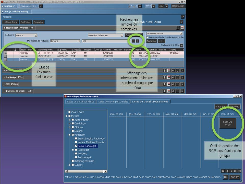 Etat de lexamen facile à voir Recherches simples ou complexes Affichage des informations utiles (ex :nombre dimages par série) Outil de gestion des RC