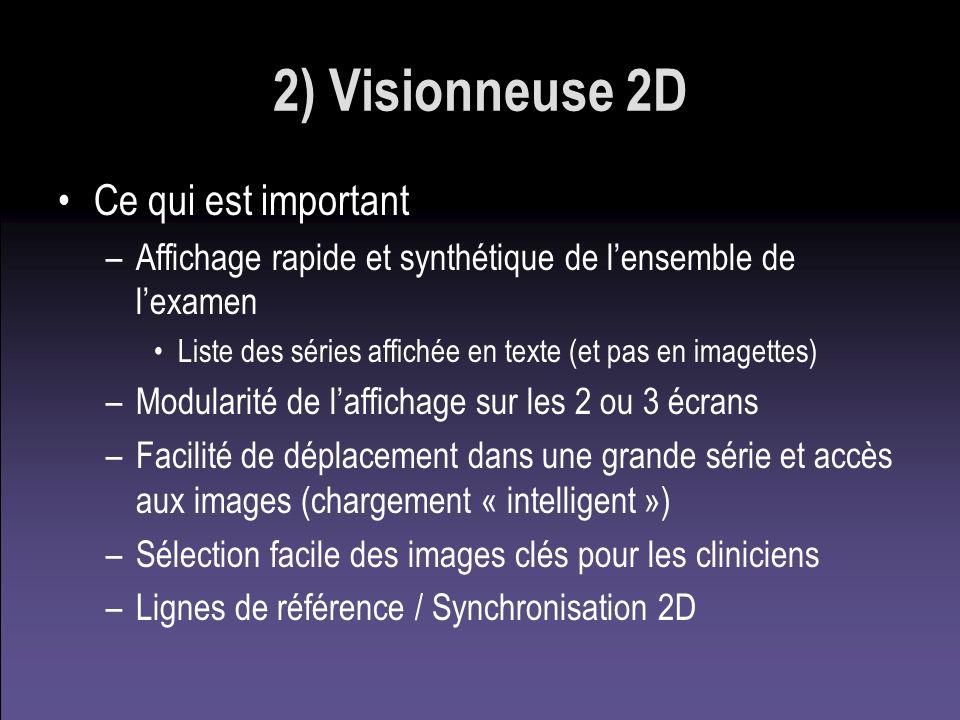 2) Visionneuse 2D Ce qui est important –Affichage rapide et synthétique de lensemble de lexamen Liste des séries affichée en texte (et pas en imagette