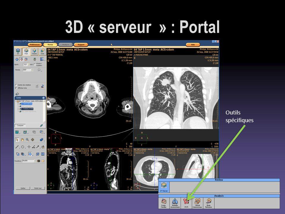 3D « serveur » : Portal Outils spécifiques
