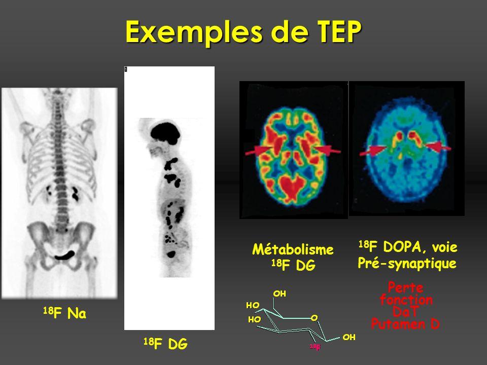 Exemples de TEP Métabolisme 18 F DG 18 F DOPA, voie Pré-synaptique Perte fonction DaT Putamen D 18 F DG 18 F Na