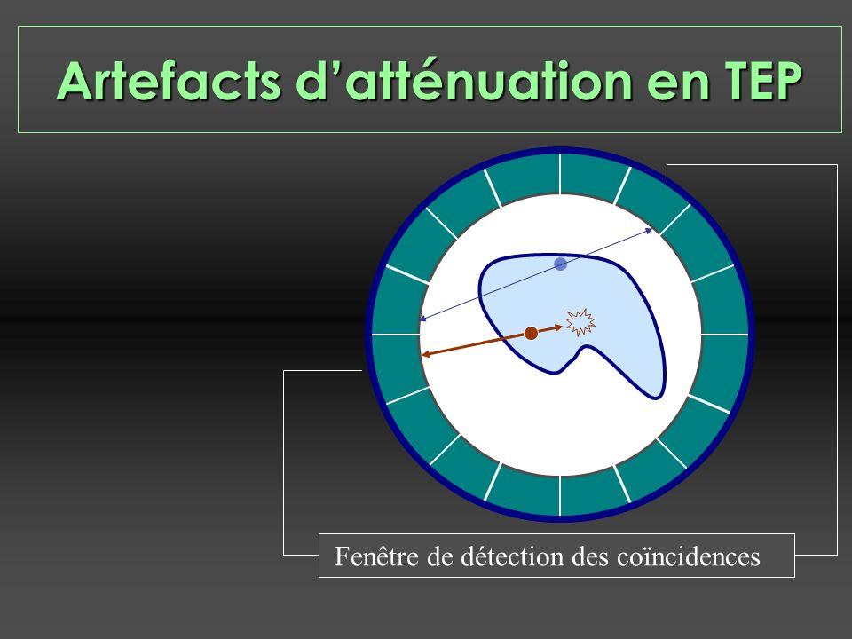 Fenêtre de détection des coïncidences Artefacts datténuation en TEP