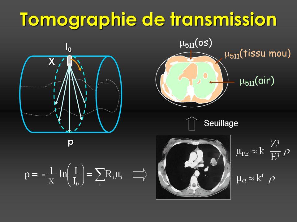 Tomographie de transmission I0I0I0I0 X p Seuillage 511 (air) 511 (os) 511 (tissu mou)