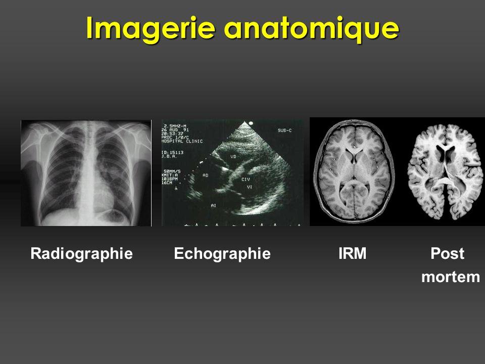 Imagerie fonctionnelle Kujala et al., 2000 Cortex auditif Cortex visuel Sujet normal Aveugle de naissance