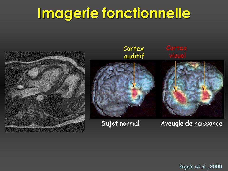 Généralisation Approximation : F.Ben Bouallègue, JF.