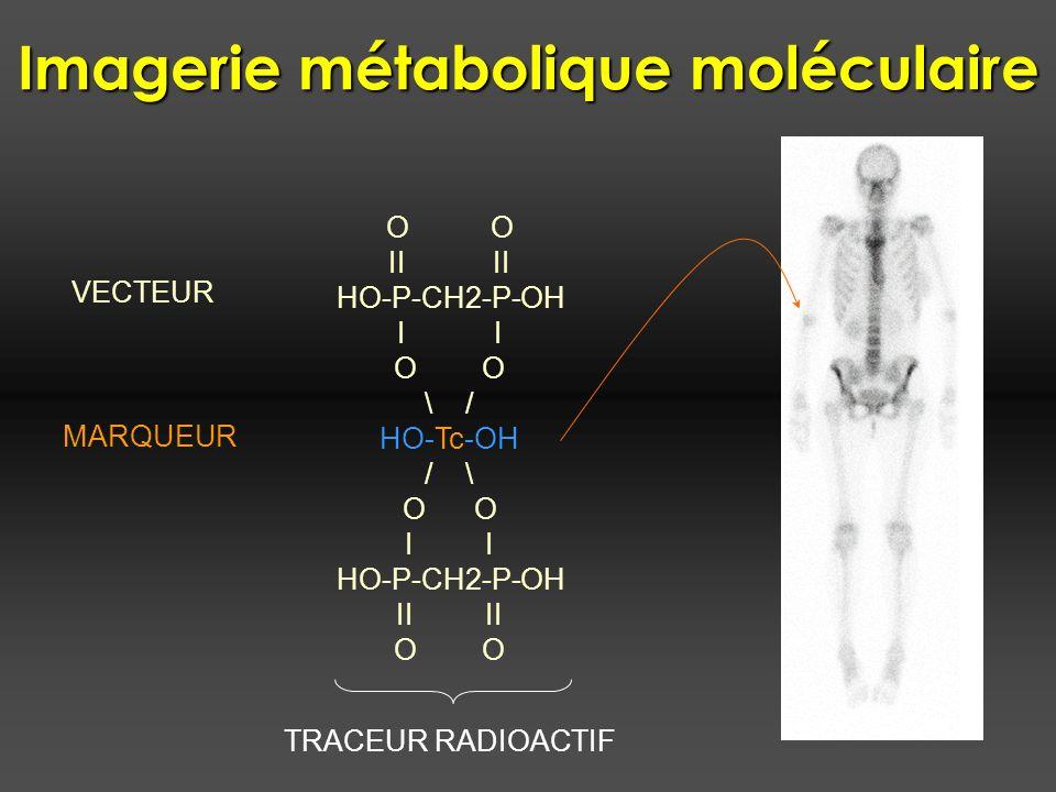 Imagerie métabolique moléculaire TRACEUR RADIOACTIF O II HO-P-CH2-P-OH I O \ / HO-Tc-OH / \ O I HO-P-CH2-P-OH II O VECTEUR MARQUEUR