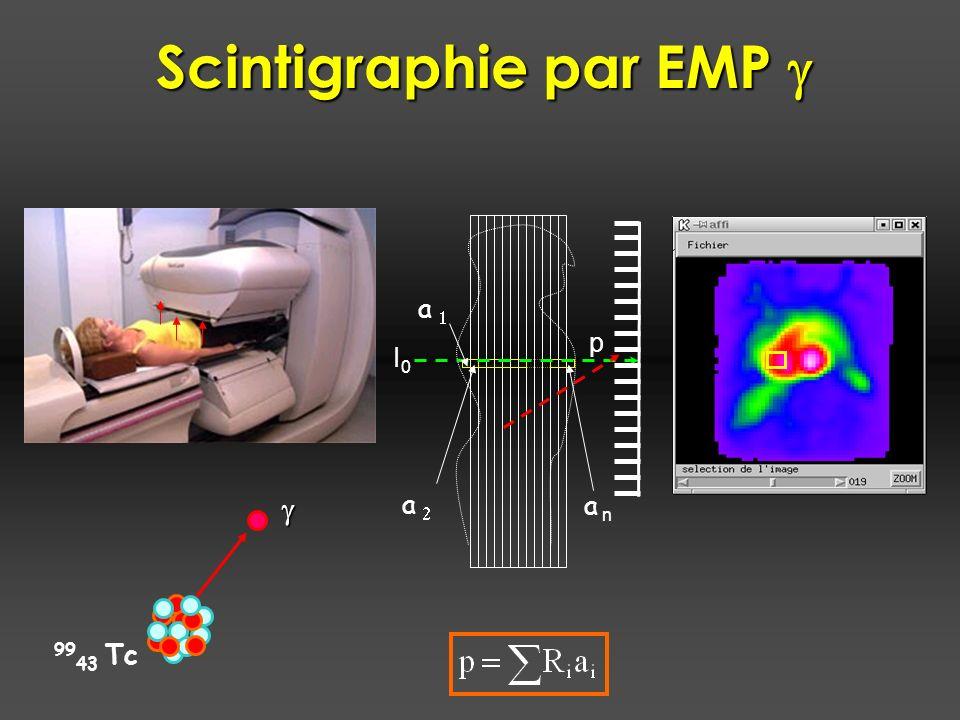 I0I0 p a a n a 99 43 Tc Scintigraphie par EMP Scintigraphie par EMP