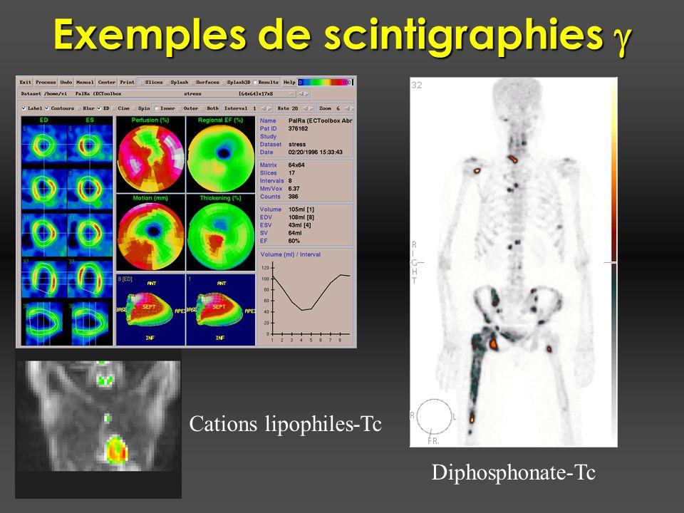 Exemples de scintigraphies Exemples de scintigraphies Cations lipophiles-Tc Diphosphonate-Tc