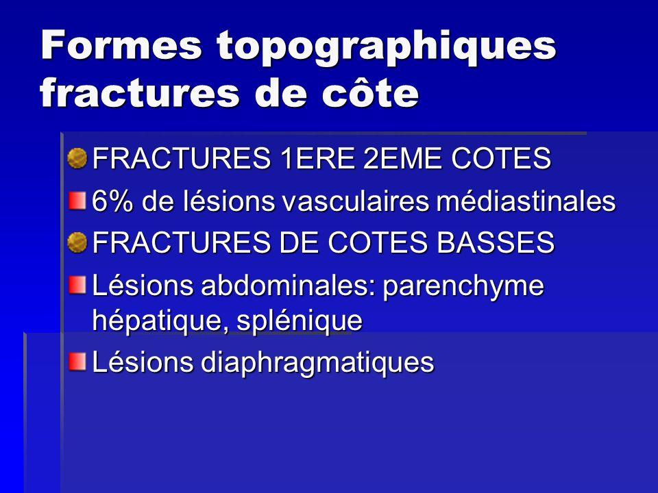 Formes topographiques fractures de côte FRACTURES 1ERE 2EME COTES 6% de lésions vasculaires médiastinales FRACTURES DE COTES BASSES Lésions abdominale