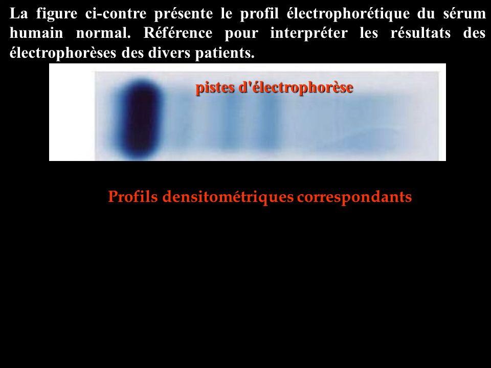La figure ci-contre présente le profil électrophorétique du sérum humain normal. Référence pour interpréter les résultats des électrophorèses des dive