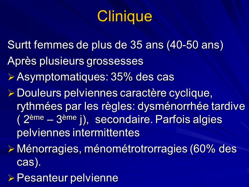 Clinique Surtt femmes de plus de 35 ans (40-50 ans) Après plusieurs grossesses Asymptomatiques: 35% des cas Asymptomatiques: 35% des cas Douleurs pelv