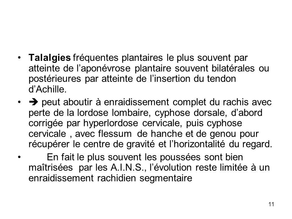 11 Talalgies fréquentes plantaires le plus souvent par atteinte de laponévrose plantaire souvent bilatérales ou postérieures par atteinte de linsertio