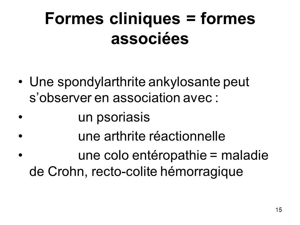 15 Formes cliniques = formes associées Une spondylarthrite ankylosante peut sobserver en association avec : un psoriasis une arthrite réactionnelle un