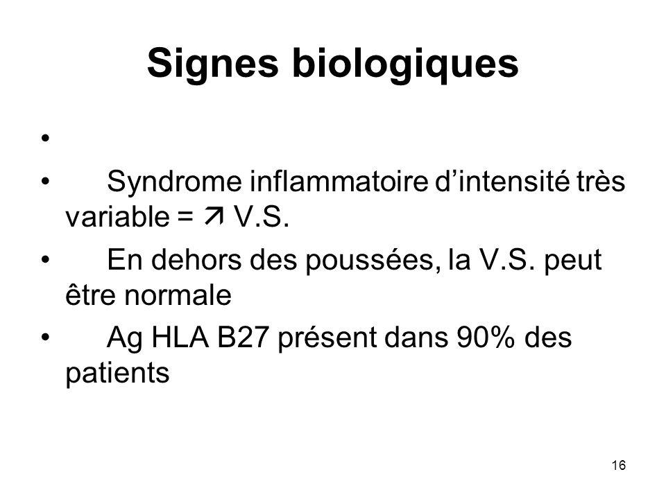 16 Signes biologiques Syndrome inflammatoire dintensité très variable = V.S. En dehors des poussées, la V.S. peut être normale Ag HLA B27 présent dans