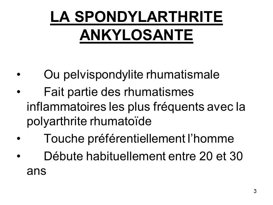3 LA SPONDYLARTHRITE ANKYLOSANTE Ou pelvispondylite rhumatismale Fait partie des rhumatismes inflammatoires les plus fréquents avec la polyarthrite rh