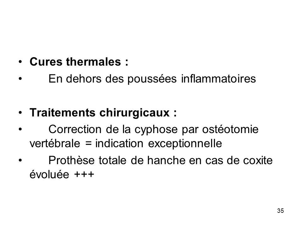 35 Cures thermales : En dehors des poussées inflammatoires Traitements chirurgicaux : Correction de la cyphose par ostéotomie vertébrale = indication