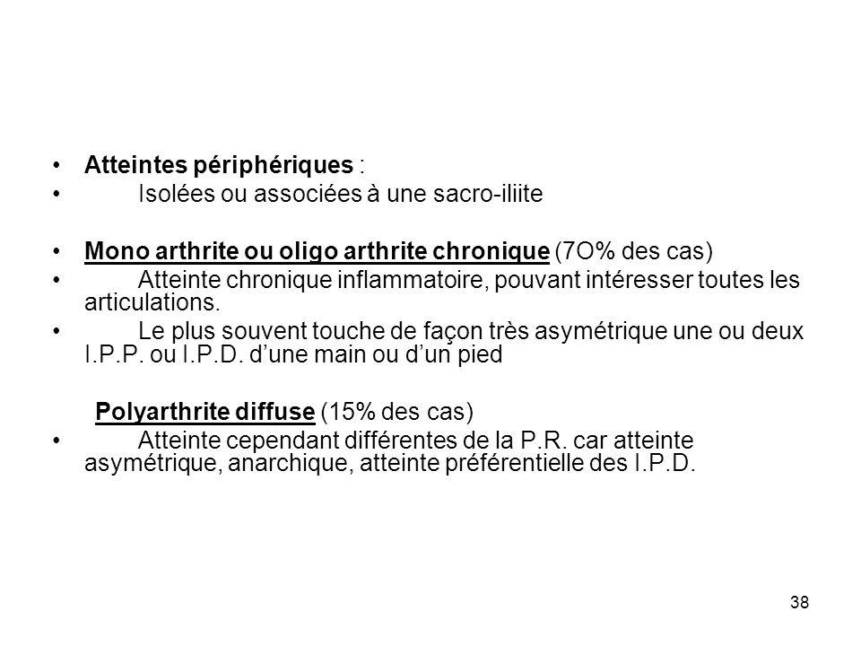 38 Atteintes périphériques : Isolées ou associées à une sacro-iliite Mono arthrite ou oligo arthrite chronique (7O% des cas) Atteinte chronique inflam