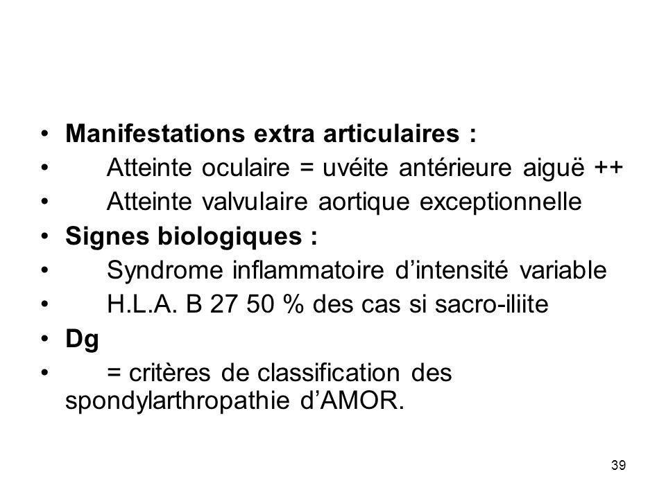 39 Manifestations extra articulaires : Atteinte oculaire = uvéite antérieure aiguë ++ Atteinte valvulaire aortique exceptionnelle Signes biologiques :