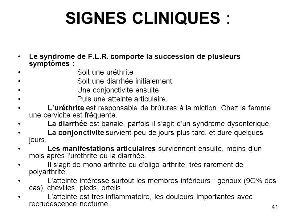 41 SIGNES CLINIQUES : Le syndrome de F.L.R. comporte la succession de plusieurs symptômes : Soit une uréthrite Soit une diarrhée initialement Une conj
