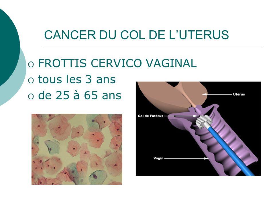 CANCER DU COL DE LUTERUS FROTTIS CERVICO VAGINAL tous les 3 ans de 25 à 65 ans