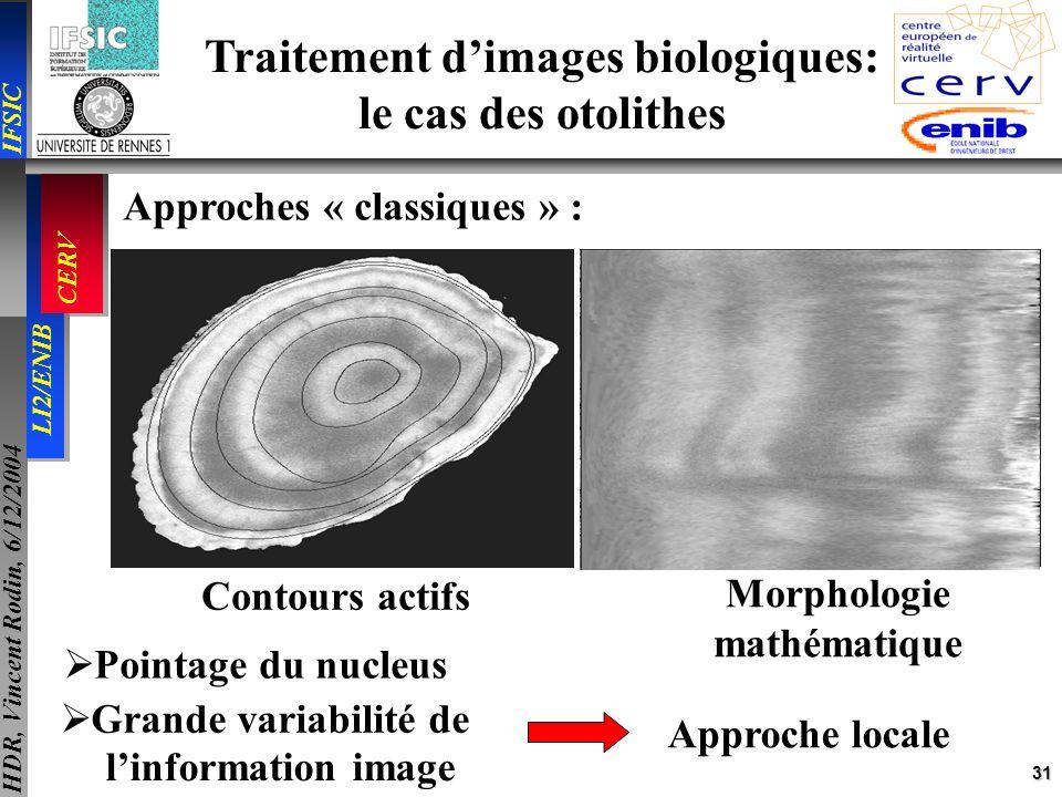 31 IFSIC LI2/ENIB CERV HDR, Vincent Rodin, 6/12/2004 Traitement dimages biologiques: le cas des otolithes Approches « classiques » : Contours actifs M