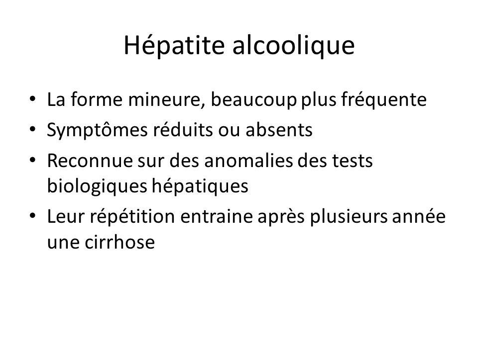 Hépatite alcoolique La forme mineure, beaucoup plus fréquente Symptômes réduits ou absents Reconnue sur des anomalies des tests biologiques hépatiques
