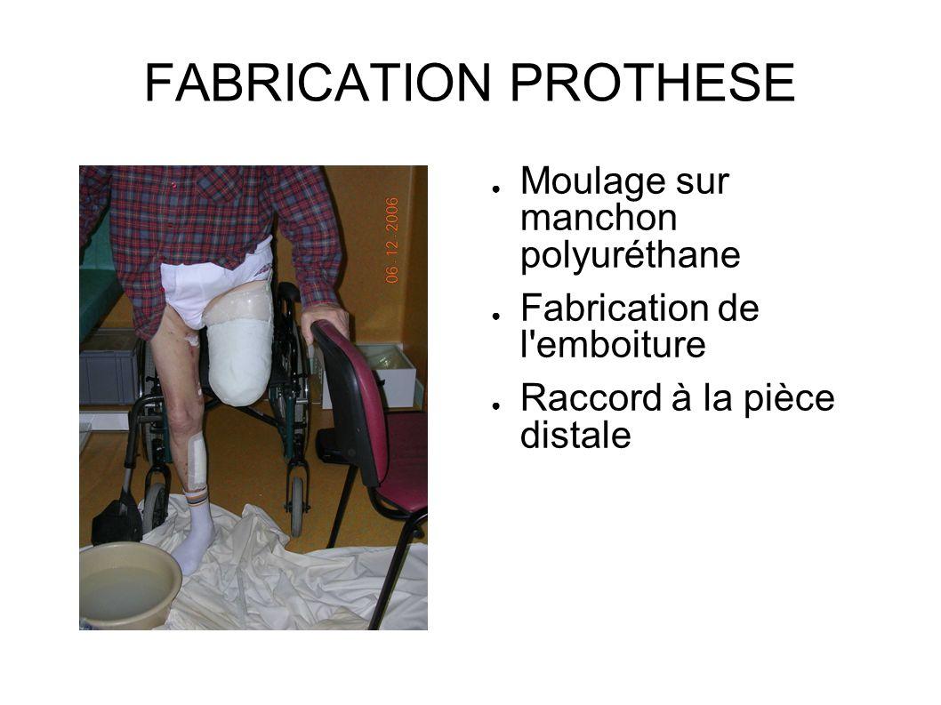 FABRICATION PROTHESE Moulage sur manchon polyuréthane Fabrication de l'emboiture Raccord à la pièce distale