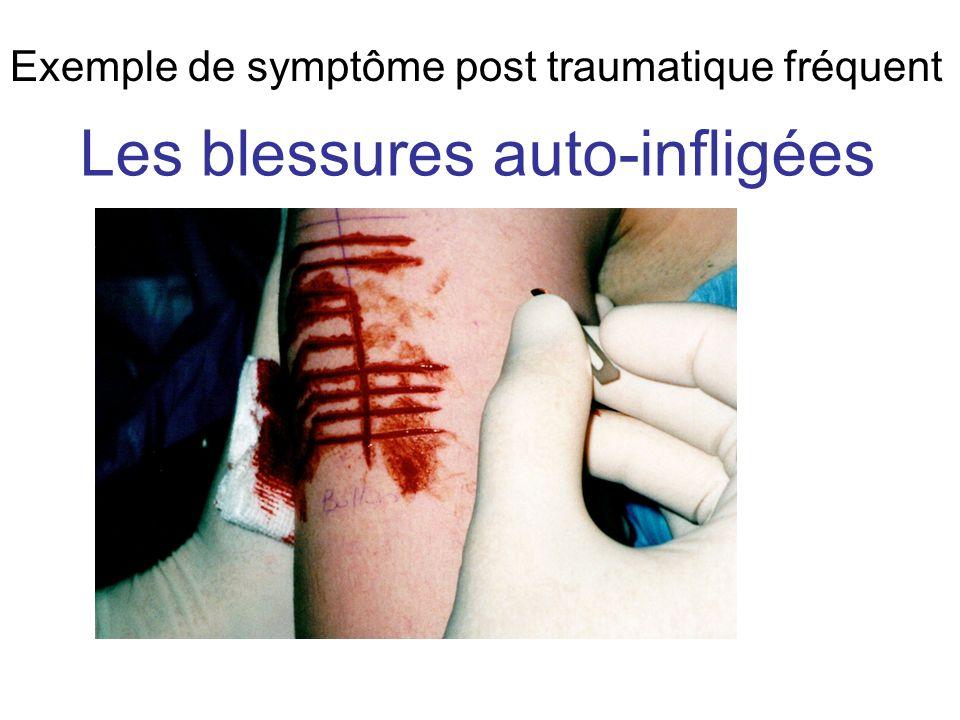 Les blessures auto-infligées Exemple de symptôme post traumatique fréquent