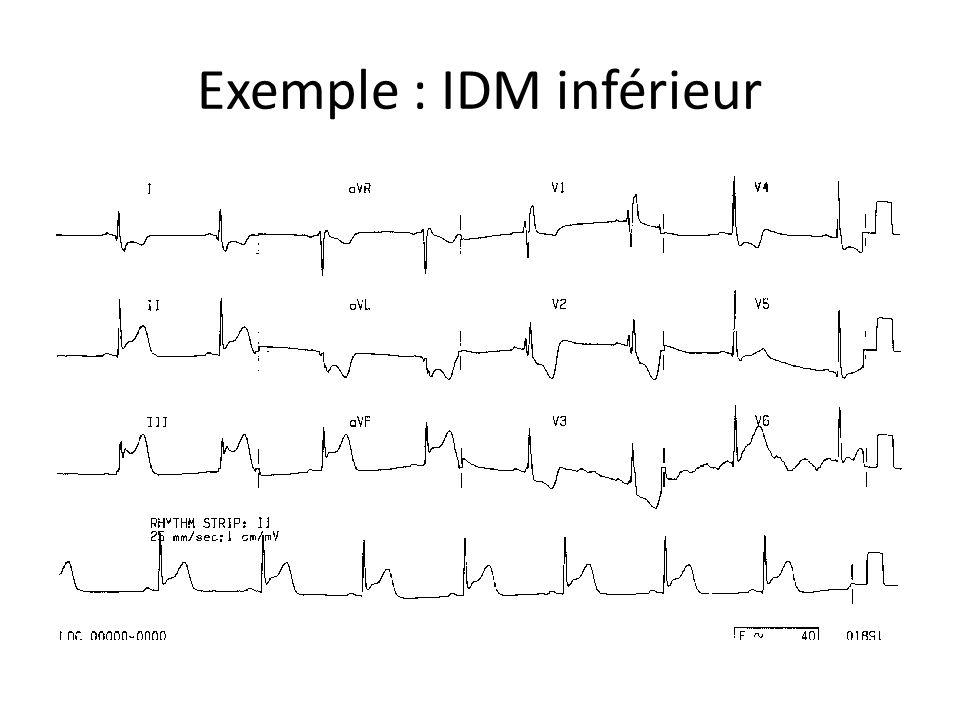 Exemple : IDM inférieur