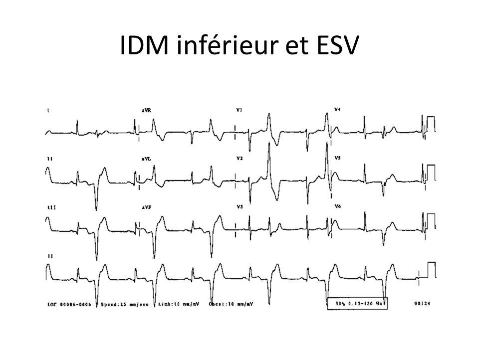 IDM inférieur et ESV