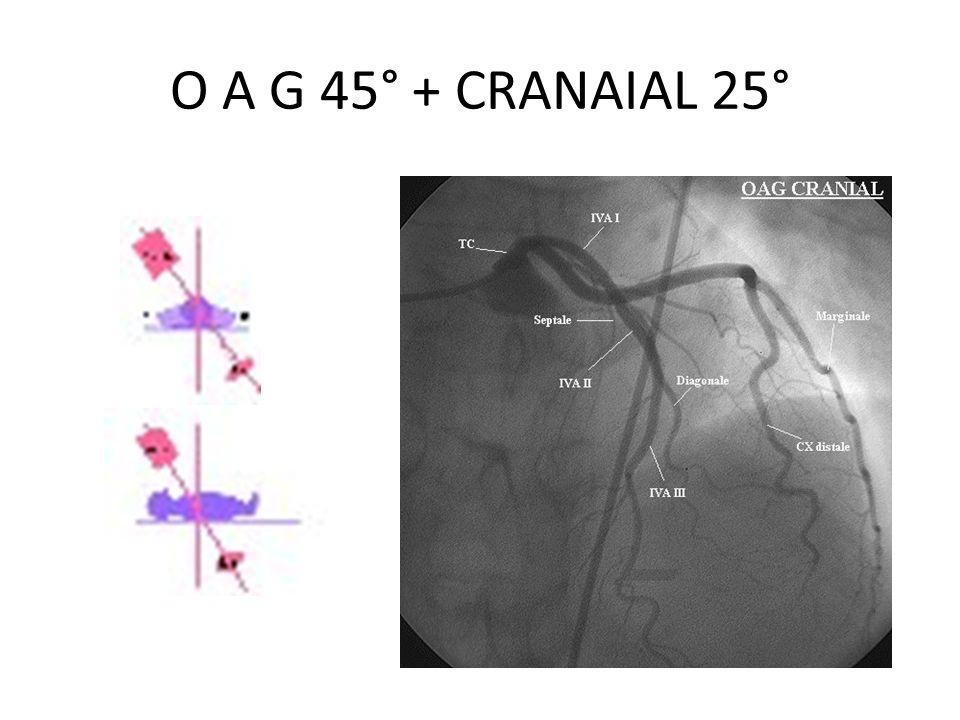 O A G 45° + CRANAIAL 25°