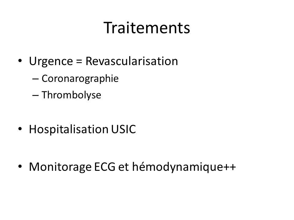 Urgence = Revascularisation – Coronarographie – Thrombolyse Hospitalisation USIC Monitorage ECG et hémodynamique++