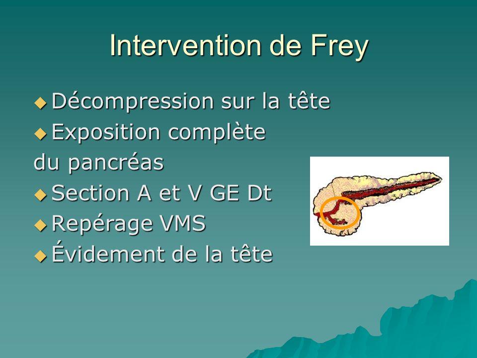 Intervention de Frey Décompression sur la tête Décompression sur la tête Exposition complète Exposition complète du pancréas Section A et V GE Dt Sect