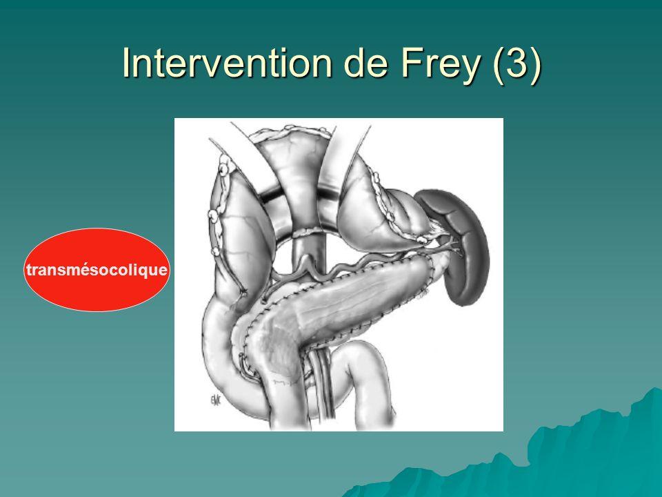 Intervention de Frey (3) transmésocolique