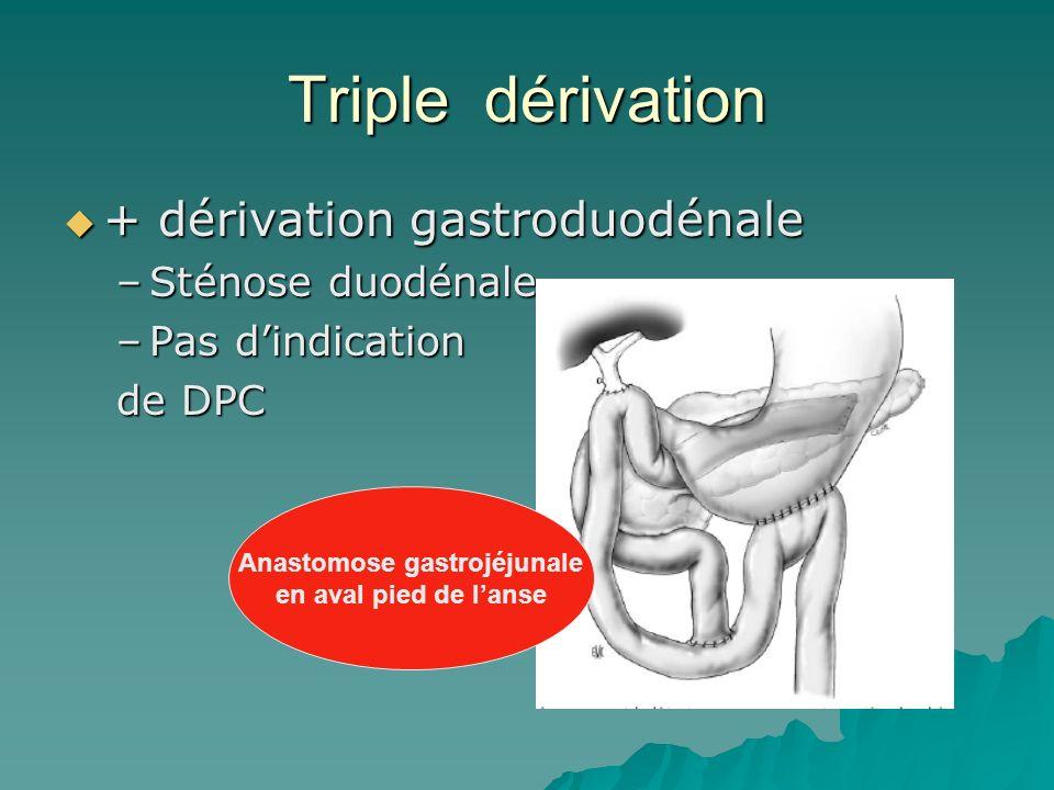 Triple dérivation + dérivation gastroduodénale + dérivation gastroduodénale –Sténose duodénale –Pas dindication de DPC Anastomose gastrojéjunale en av