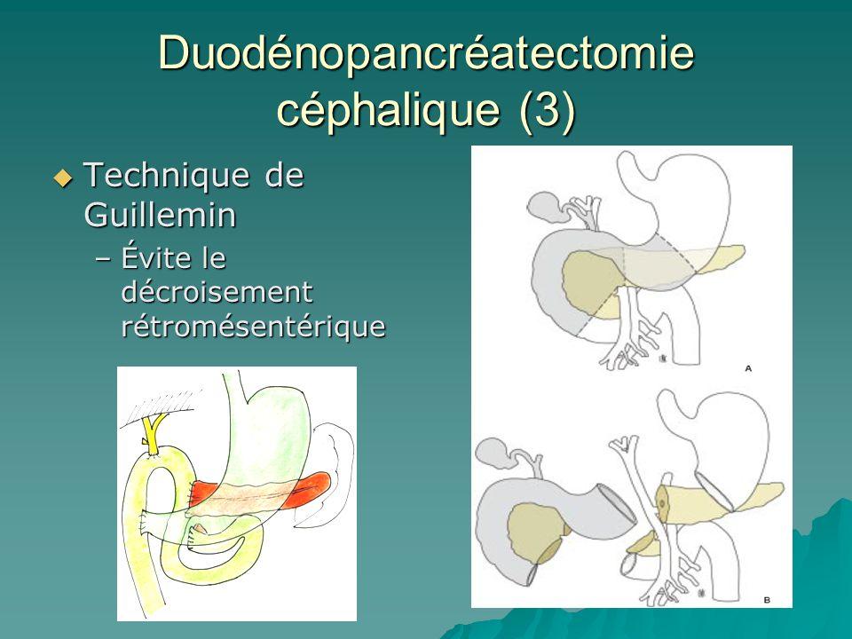 Duodénopancréatectomie céphalique (3) Technique de Guillemin Technique de Guillemin –Évite le décroisement rétromésentérique