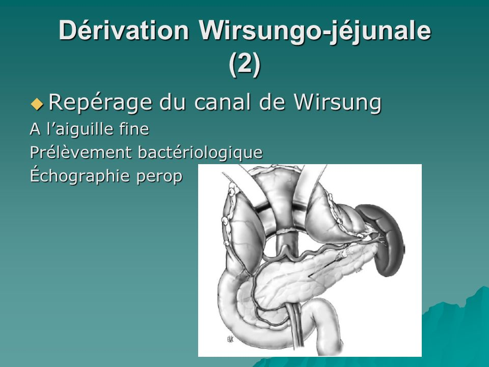 Dérivation Wirsungo-jéjunale (2) Repérage du canal de Wirsung Repérage du canal de Wirsung A laiguille fine Prélèvement bactériologique Échographie pe