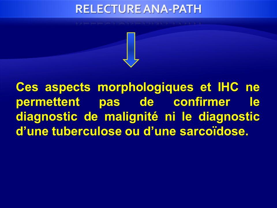 Ces aspects morphologiques et IHC ne permettent pas de confirmer le diagnostic de malignité ni le diagnostic dune tuberculose ou dune sarcoïdose.