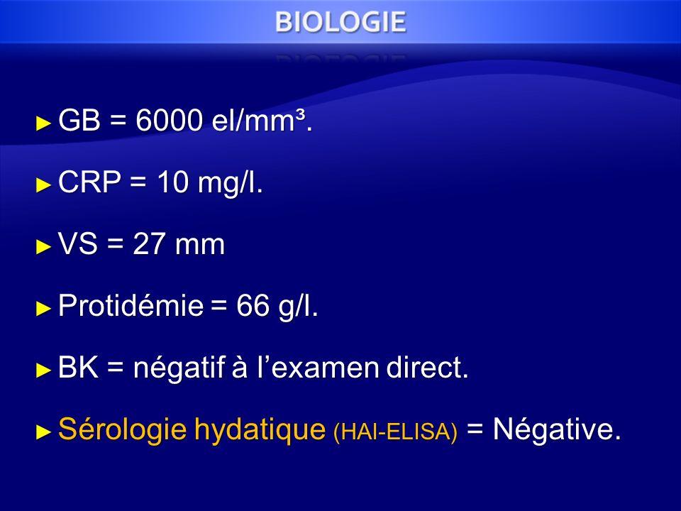 GB = 6000 el/mm³. GB = 6000 el/mm³. CRP = 10 mg/l. CRP = 10 mg/l. VS = 27 mm VS = 27 mm Protidémie = 66 g/l. Protidémie = 66 g/l. BK = négatif à lexam