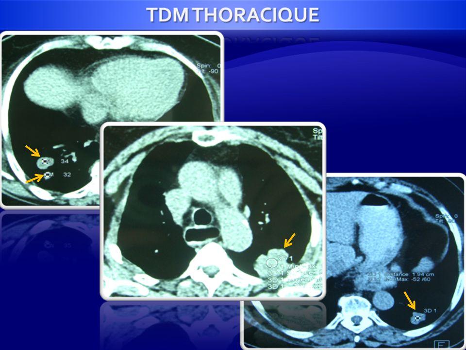 ANA-PATH: Métastase bronchique dun carcinome largement nécrosé.IMMUNOHISTOCHIMIE: KL1 + CK7 + CK20 + RH - THYROIDE +++ GYNÉCOLOGIQUE +++