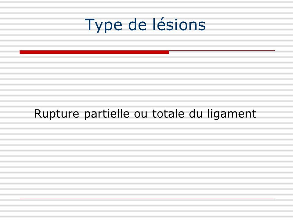 Type de lésions Rupture partielle ou totale du ligament