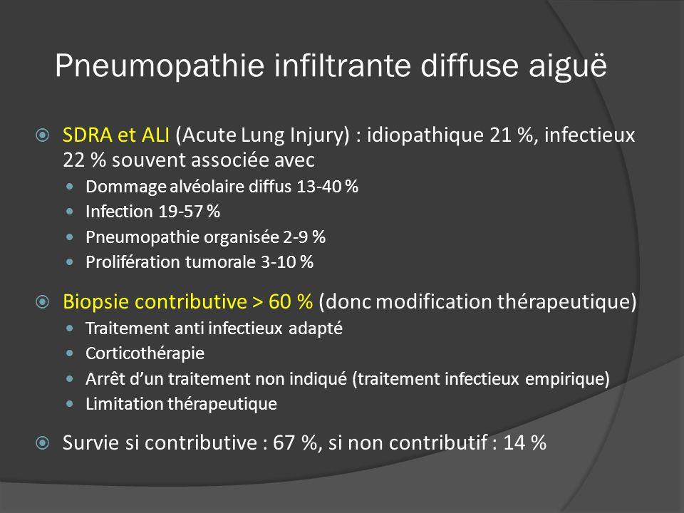 Pneumopathie infiltrante diffuse aiguë SDRA et ALI (Acute Lung Injury) : idiopathique 21 %, infectieux 22 % souvent associée avec Dommage alvéolaire d