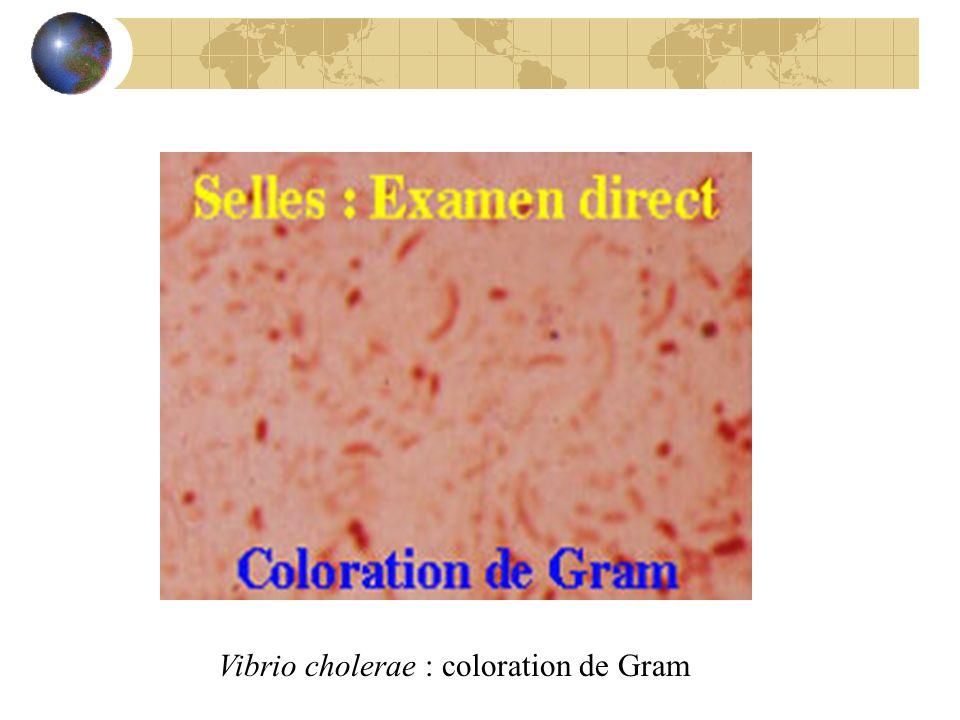 Vibrio cholerae : coloration de Gram