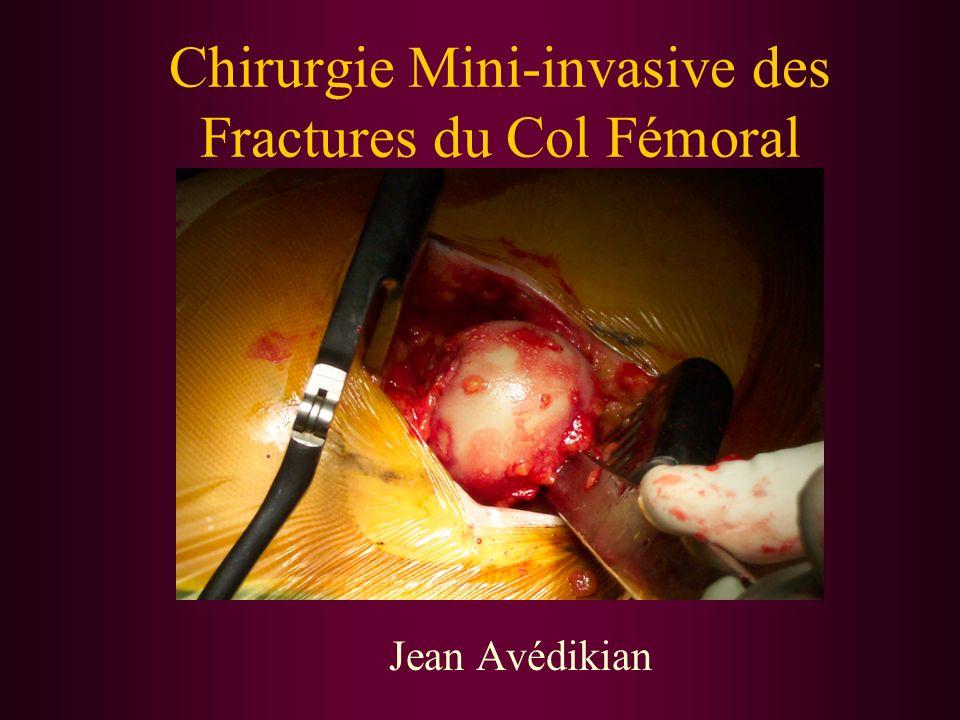Chirurgie Mini-invasive des Fractures du Col Fémoral Jean Avédikian