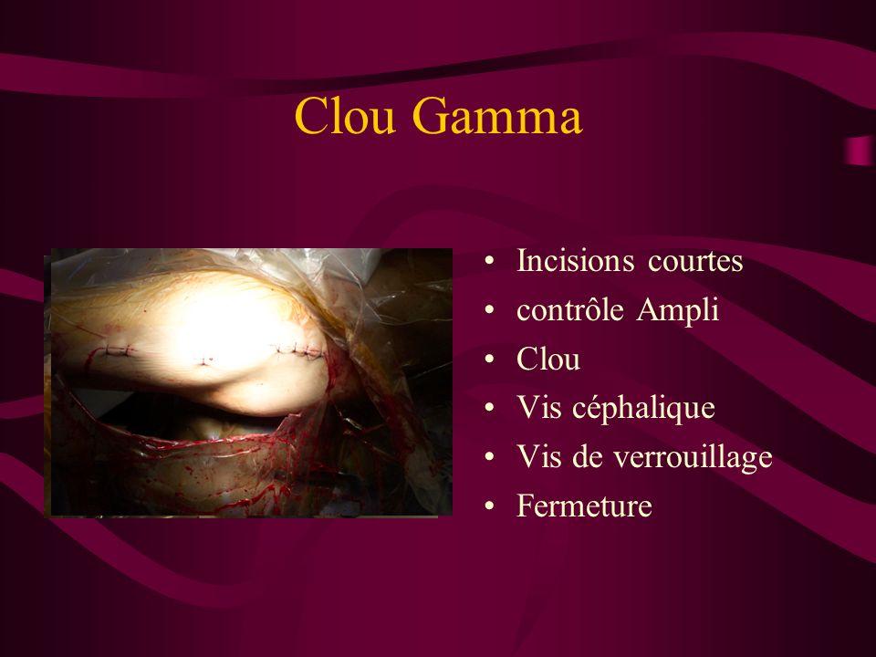 Clou Gamma Incisions courtes contrôle Ampli Clou Vis céphalique Vis de verrouillage Fermeture