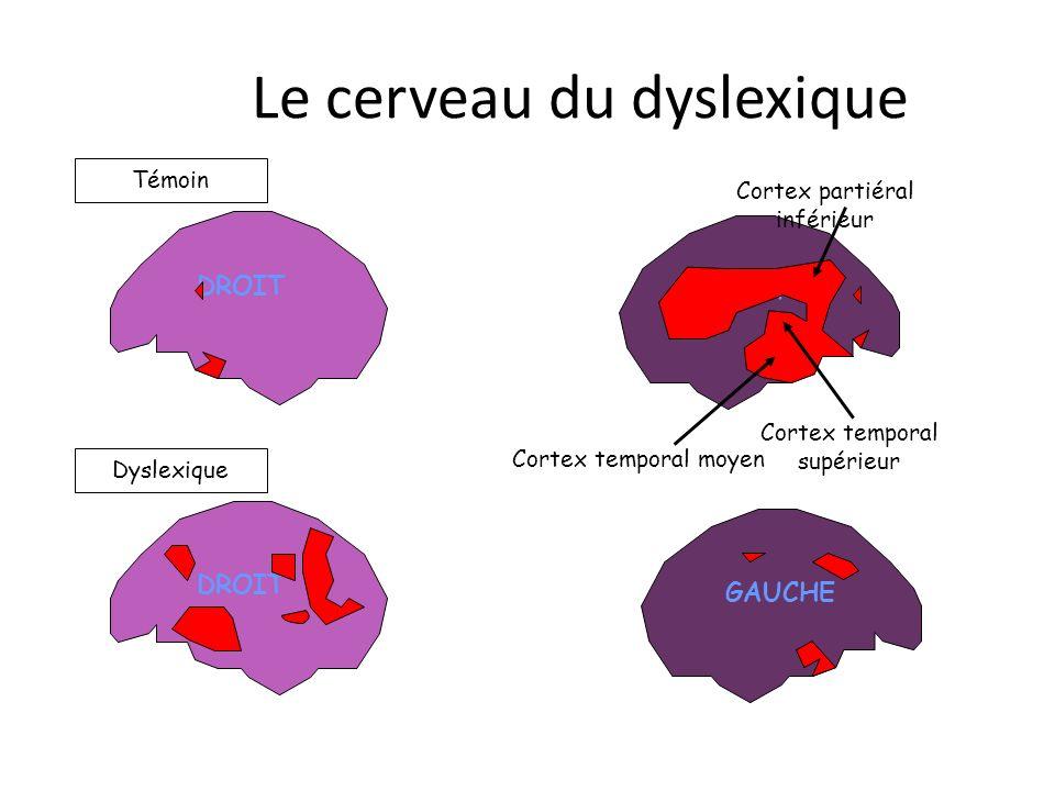 DROIT GAUCHE Témoin Dyslexique GAUCHE Cortex temporal moyen Cortex temporal supérieur Cortex partiéral inférieur Le cerveau du dyslexique