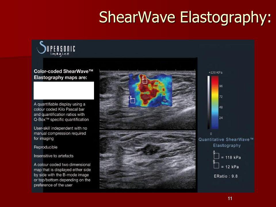 11 ShearWave Elastography: ShearWave Elastography: