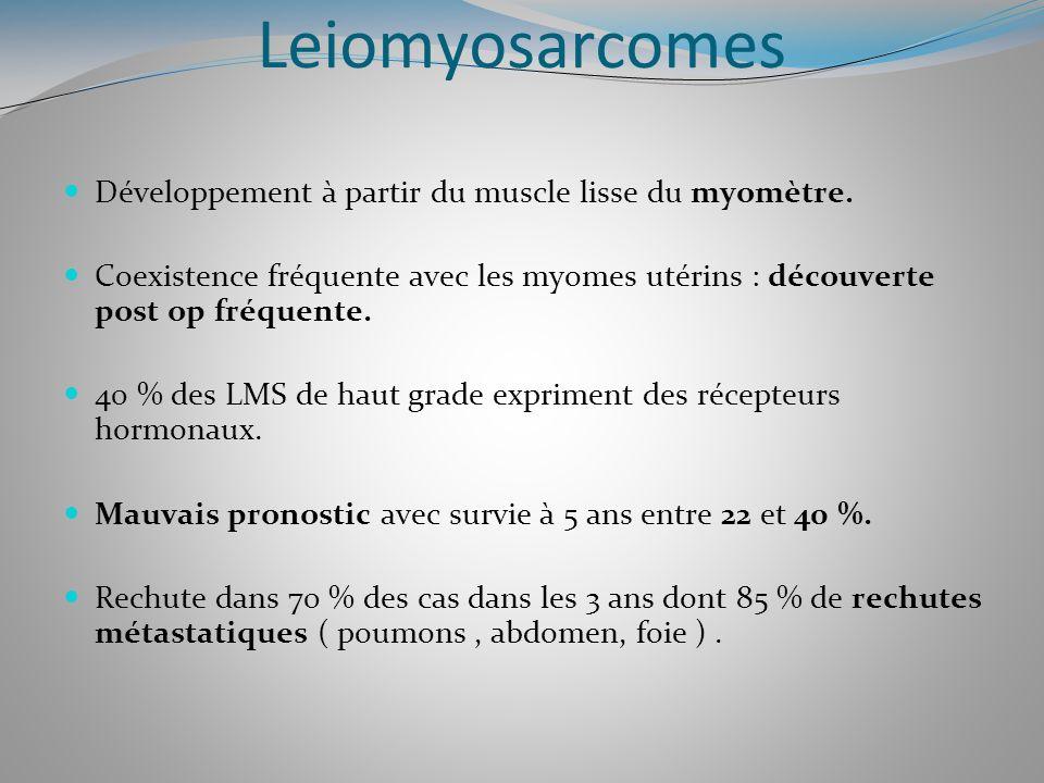 Leiomyosarcomes Développement à partir du muscle lisse du myomètre. Coexistence fréquente avec les myomes utérins : découverte post op fréquente. 40 %