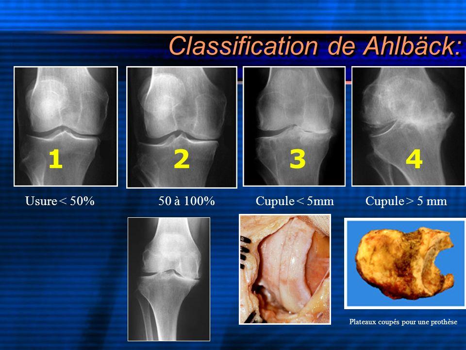 Classification de Ahlbäck: 1 2 3 4 Usure 5 mm Plateaux coupés pour une prothèse