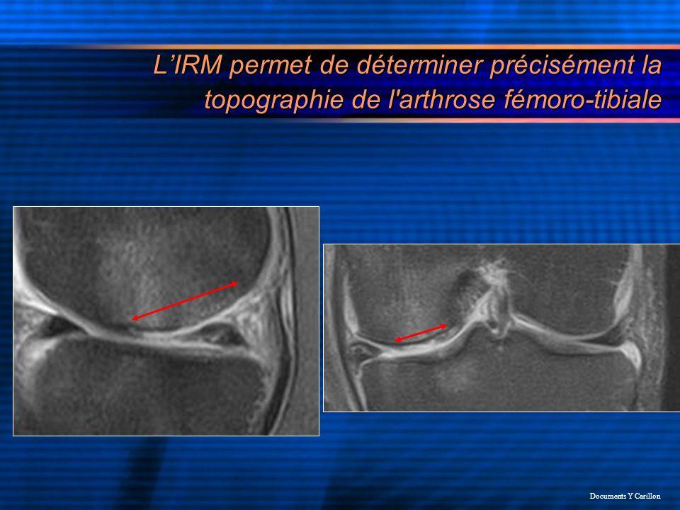 LIRM permet de déterminer précisément la topographie de l'arthrose fémoro-tibiale Documents Y Carillon