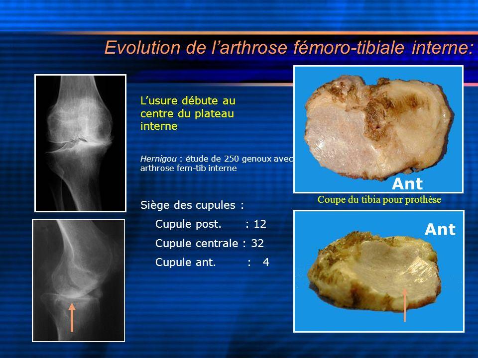 Evolution de larthrose fémoro-tibiale interne: Lusure débute au centre du plateau interne Hernigou : étude de 250 genoux avec arthrose fem-tib interne